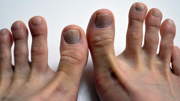 How To Prevent Bruised Toenails After Running